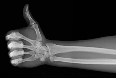 Укрепление костей для людей пожилого возраста