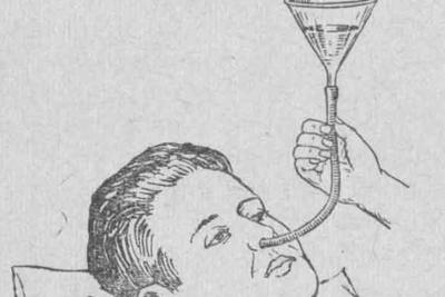 Питательный желудочный зонд