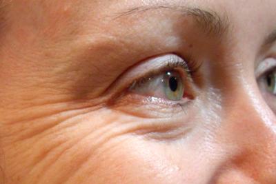 Убираем морщины вокруг глаз