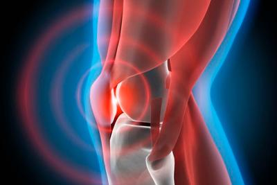 Какие бывают проявления артрита?