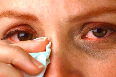 Лечение и профилактика потемнения в глазах