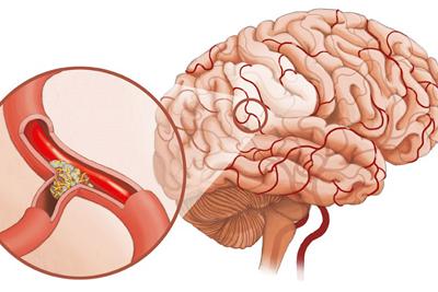 Определение атеросклероза сосудов головного мозга