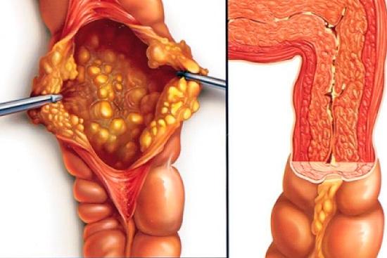 диета эрозия кишечника